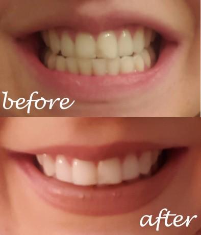 teethbeforeafter